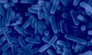 Legionella bacteria, which causes Legionnaires' disease