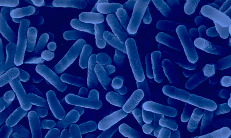 Legionnaires' Disease Outbreak Sends 12 to Hospital in Queens, NYC