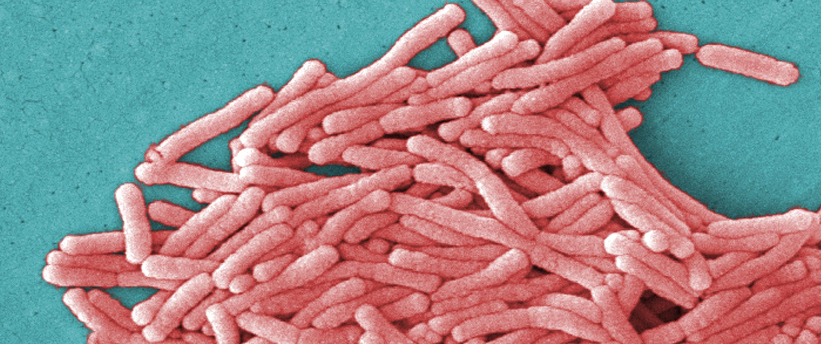 IVHQ hit with 4th Legionnaires' outbreak in 4 years