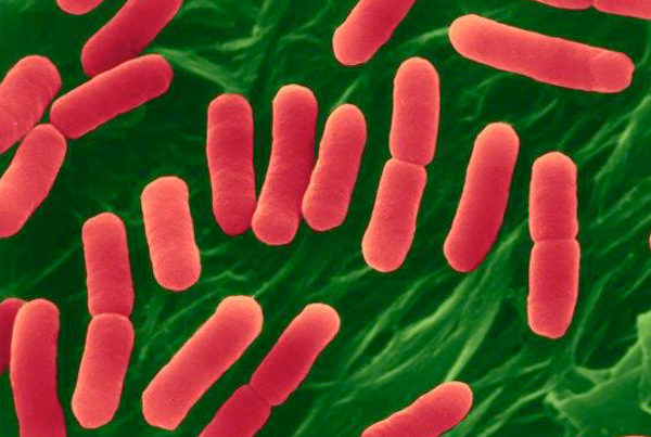 New Jersey restaurant chain E. coli outbreak
