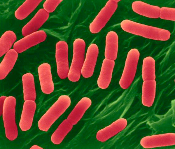New Jersey restaurant chain linked to E. coli outbreak